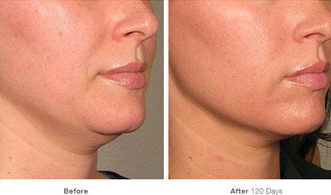 proven results with ultherapy