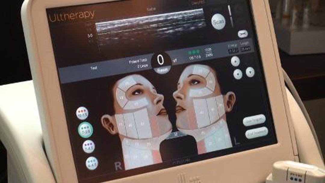 Ultherapy technology